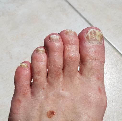 mycose pied