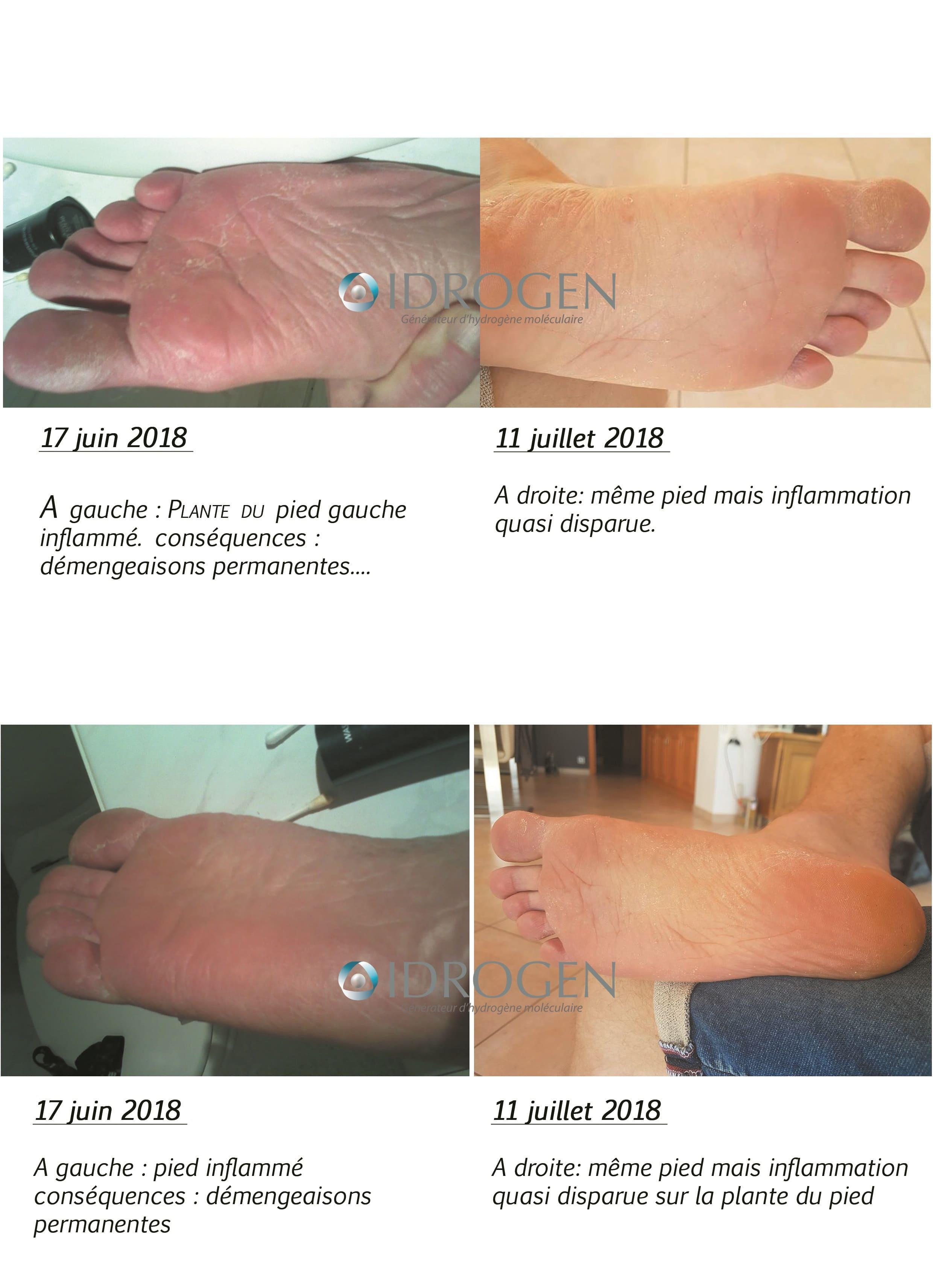 effet de l'eau hydrogénée sur mycose pied
