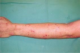 effets eau hydrogénée sur dermatite atopique