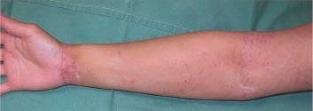 eczéma avant bras avant traitement à l'eau hydrogénée