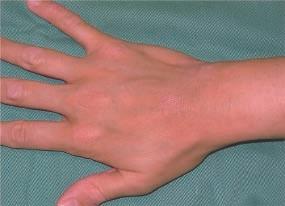 hydrogène moléculaire sur dermatite atopique après une semaine