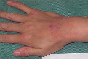eczéma, dermatite atopique