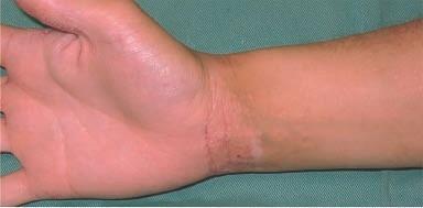 eau hydrogénée sur dermatite atopique, eczéma