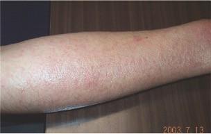 eau hydrogénée sur la dermatite atopique