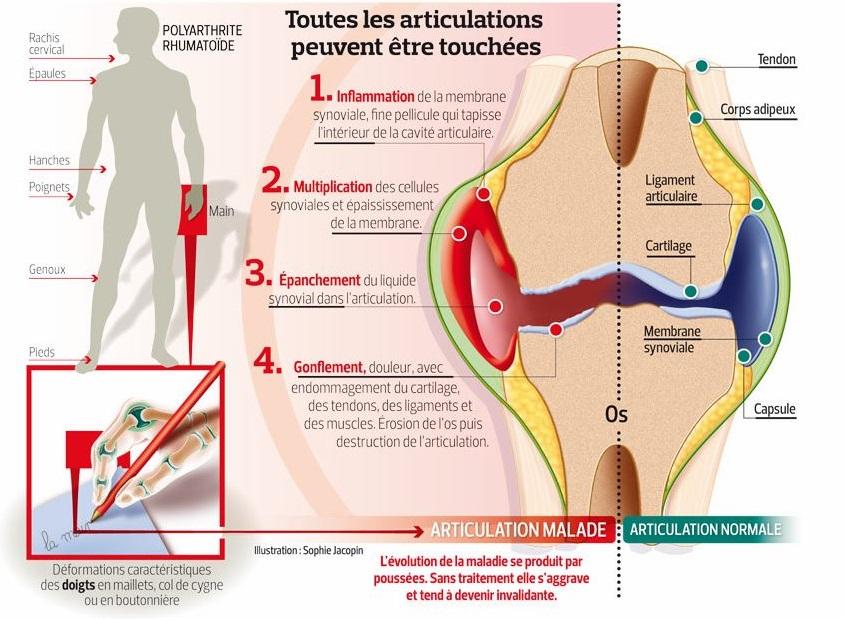 l'arthrite ou polyarthrite rhumatoïde