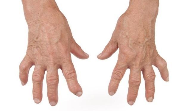 polyarthrite ou arthrite rhumatoïde